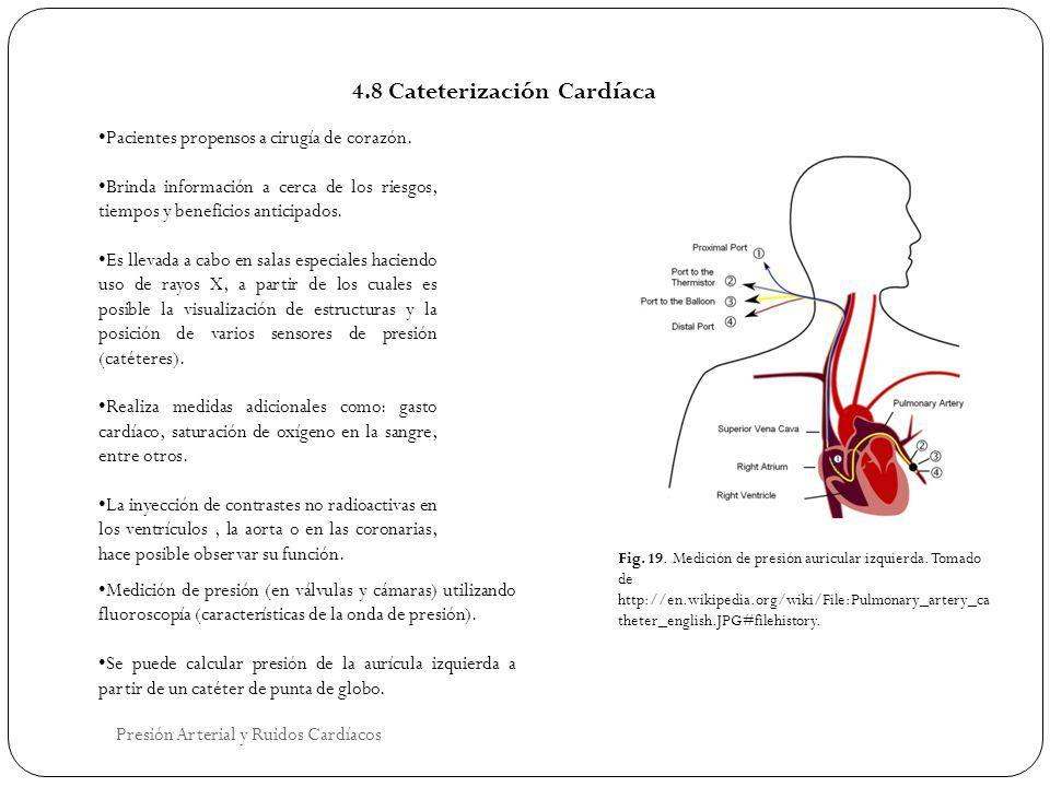 4.8 Cateterización Cardíaca