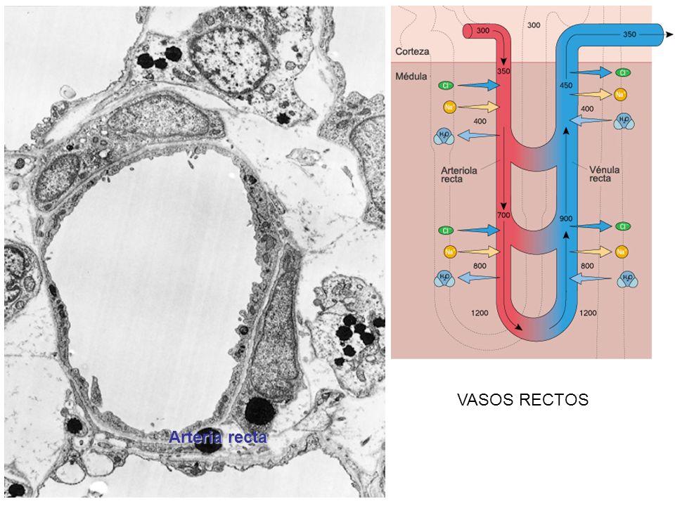 VASOS RECTOS Arteria recta