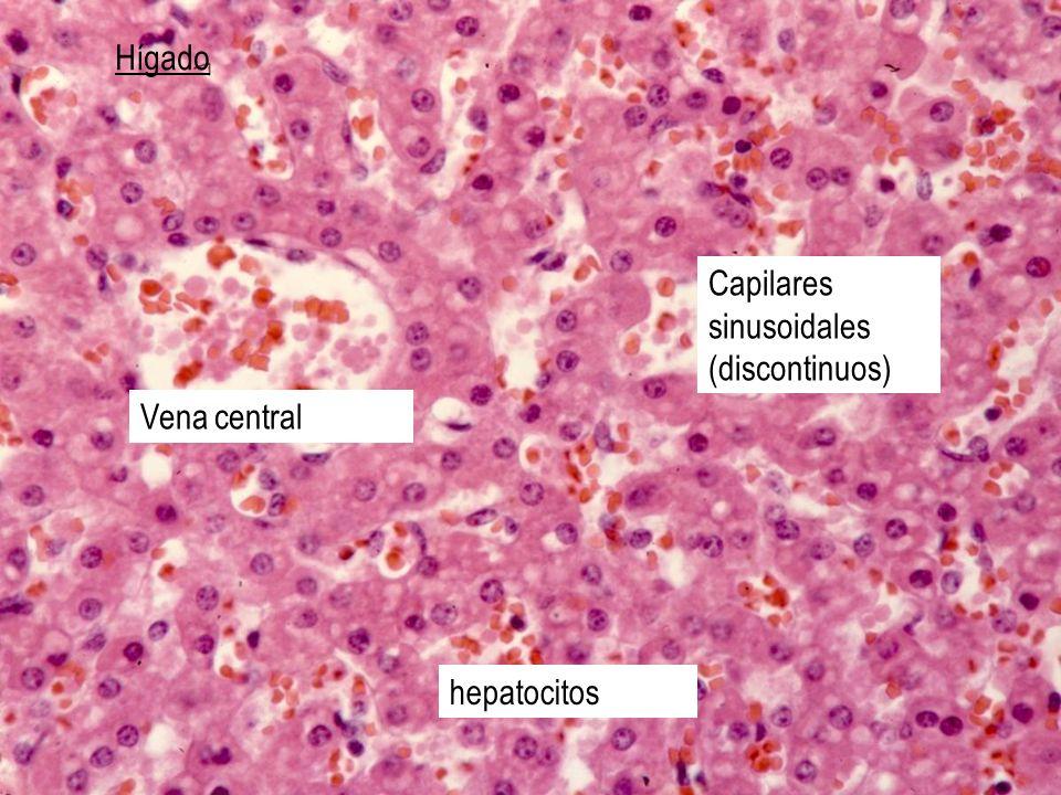 Hígado Capilares sinusoidales (discontinuos) Vena central hepatocitos