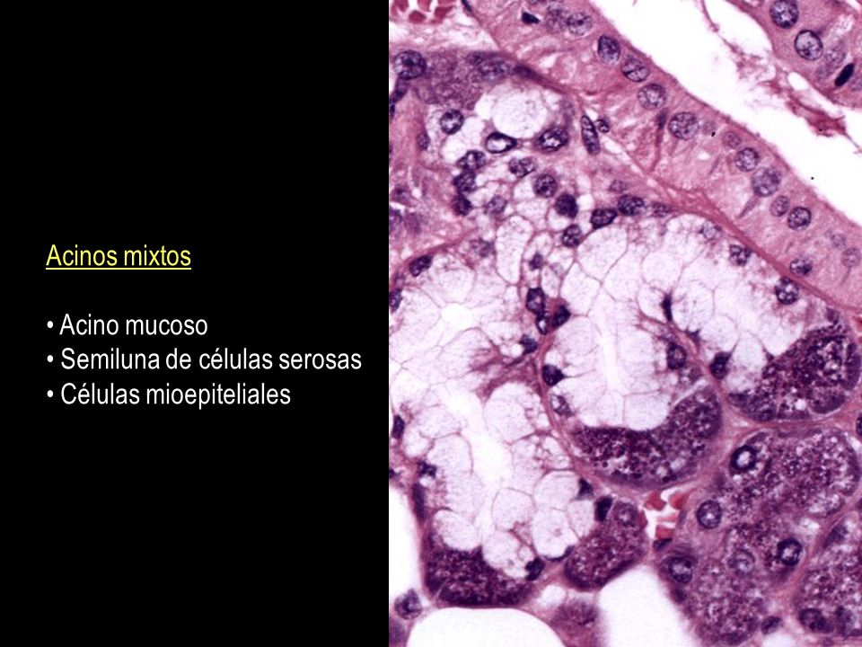 Acinos mixtos Acino mucoso Semiluna de células serosas Células mioepiteliales