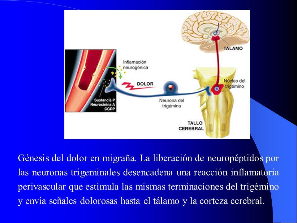 Génesis del dolor en migraña