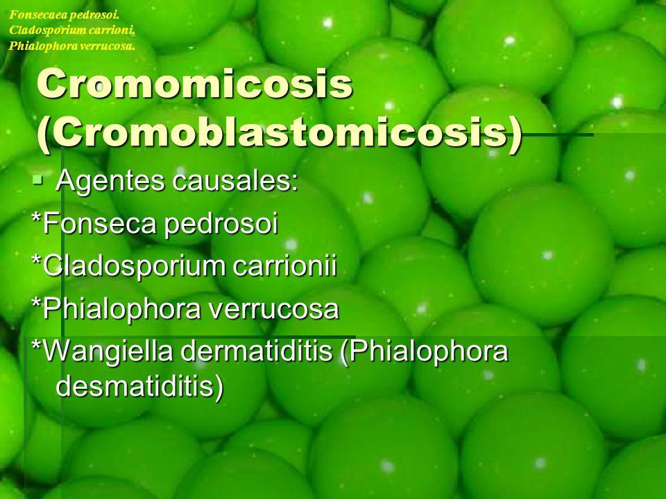Cromomicosis (Cromoblastomicosis)