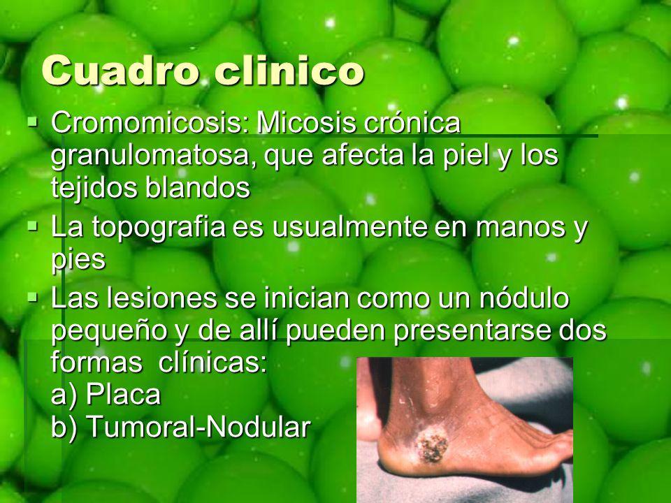 Cuadro clinico Cromomicosis: Micosis crónica granulomatosa, que afecta la piel y los tejidos blandos.