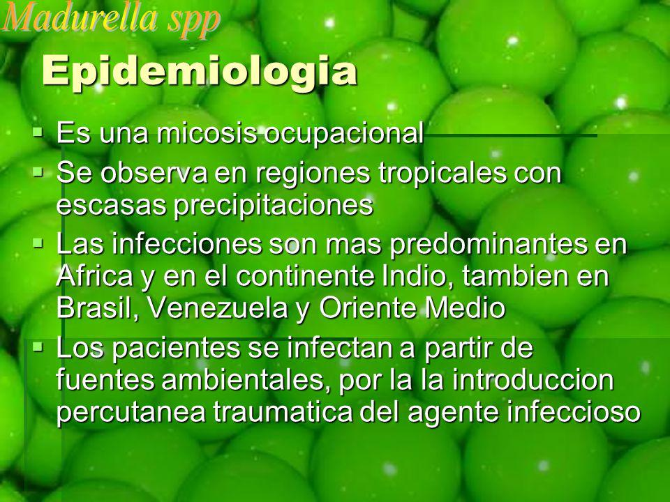 Epidemiologia Madurella spp Es una micosis ocupacional
