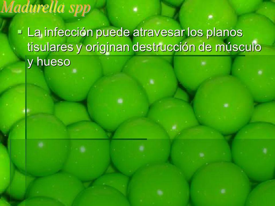 Madurella spp La infección puede atravesar los planos tisulares y originan destrucción de músculo y hueso.