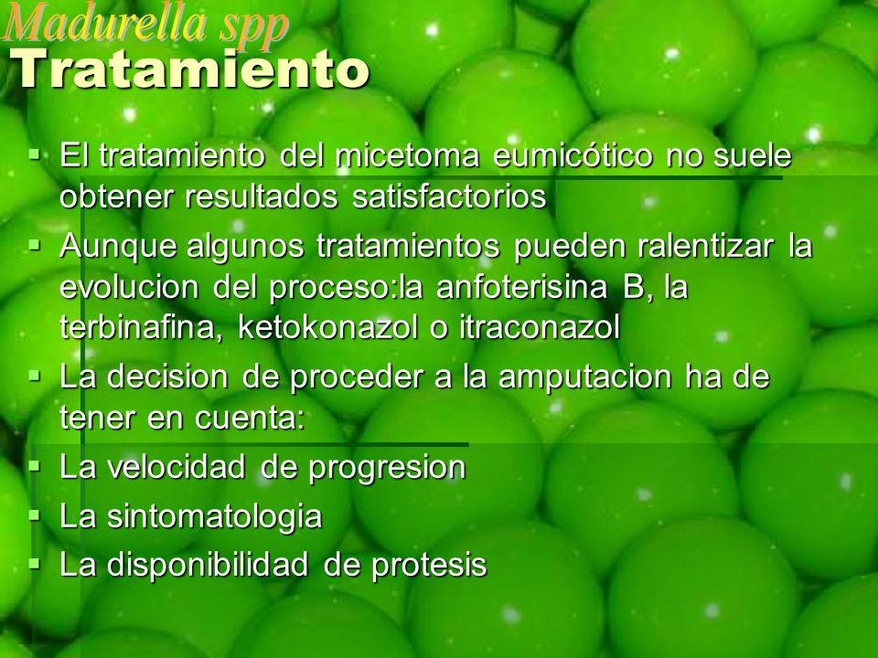 Tratamiento Madurella spp