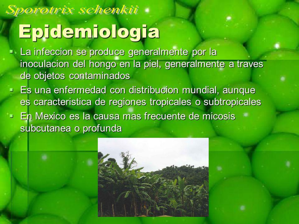 Epidemiologia Sporotrix schenkii