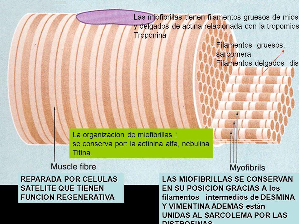 Las miofibrillas tienen filamentos gruesos de miosina