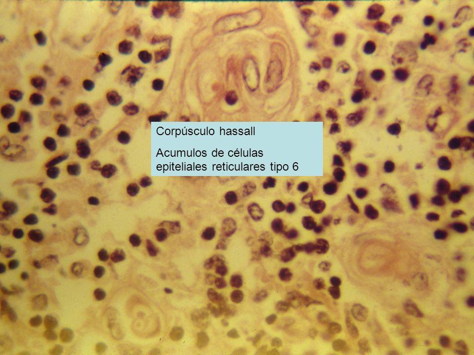 Corpúsculo hassall Acumulos de células epiteliales reticulares tipo 6