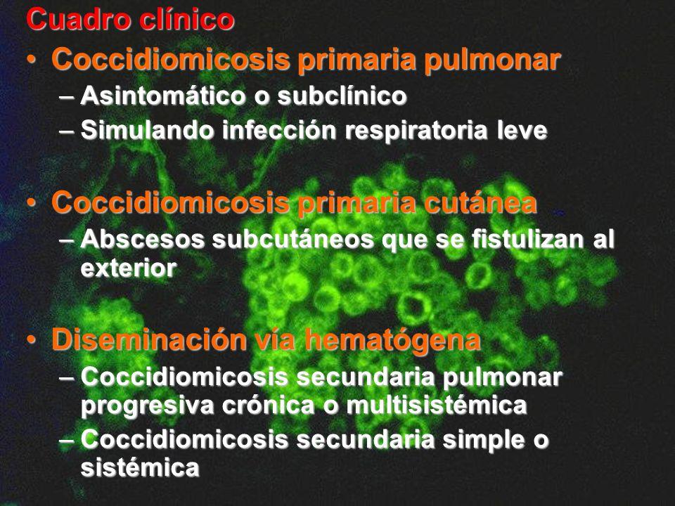 Coccidiomicosis primaria pulmonar