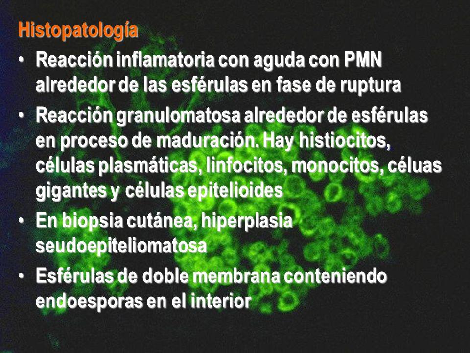 Histopatología Reacción inflamatoria con aguda con PMN alrededor de las esférulas en fase de ruptura.