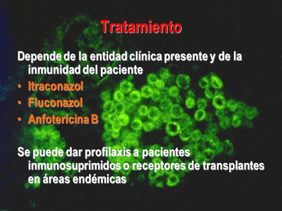 Tratamiento Depende de la entidad clínica presente y de la inmunidad del paciente. Itraconazol. Fluconazol.