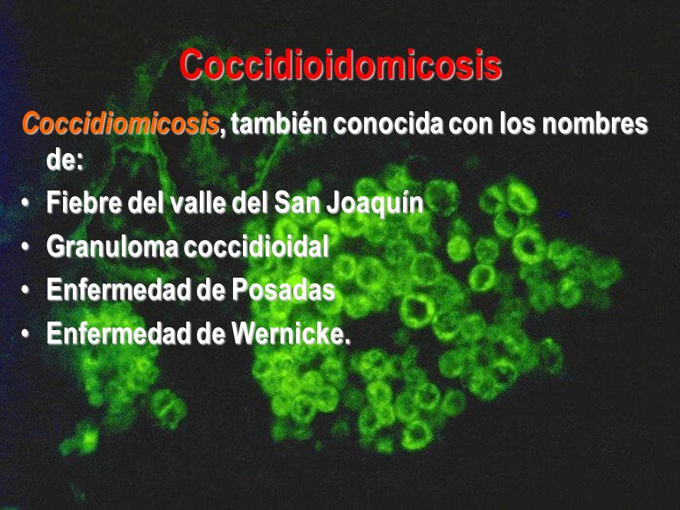 Coccidioidomicosis Coccidiomicosis, también conocida con los nombres de: Fiebre del valle del San Joaquín.