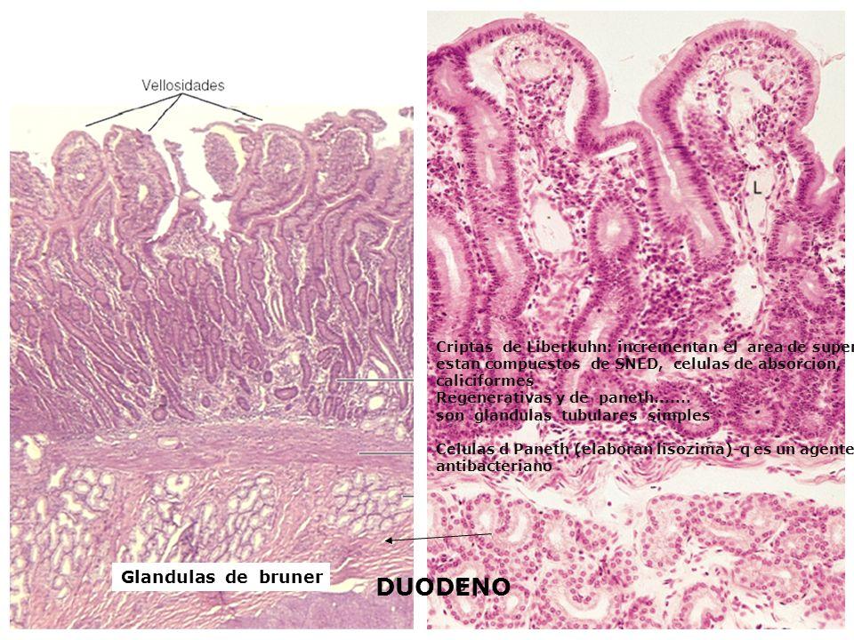 DUODENO Glandulas de bruner