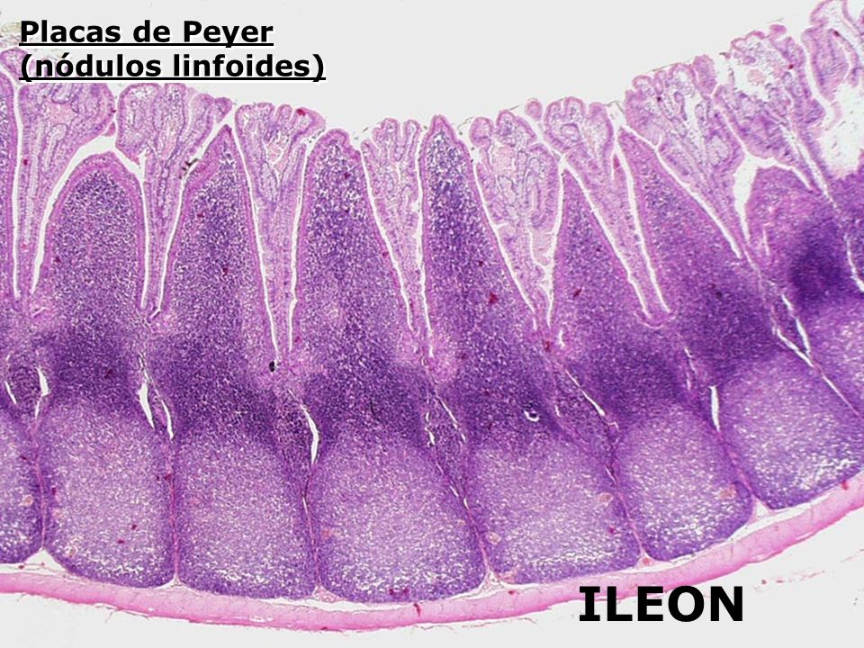 Placas de Peyer (nódulos linfoides)