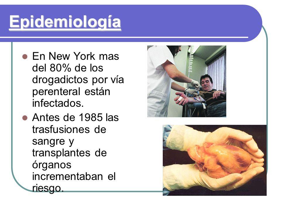 Epidemiología En New York mas del 80% de los drogadictos por vía perenteral están infectados.