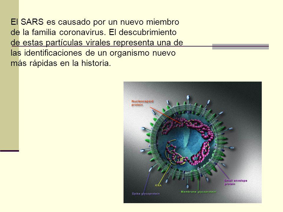 El SARS es causado por un nuevo miembro de la familia coronavirus