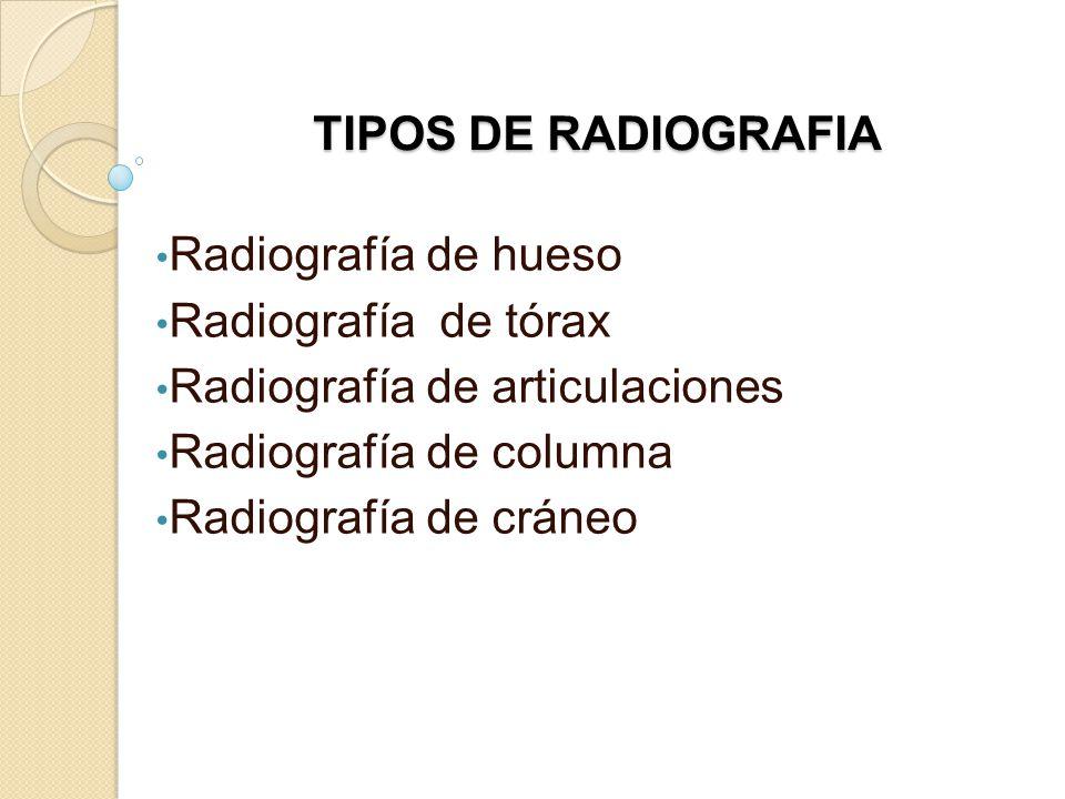 TIPOS DE RADIOGRAFIA Radiografía de hueso. Radiografía de tórax. Radiografía de articulaciones. Radiografía de columna.