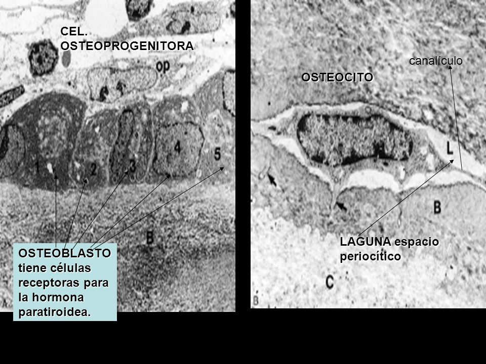 CEL. OSTEOPROGENITORA canalículo. OSTEOCITO. LAGUNA espacio periocítico.