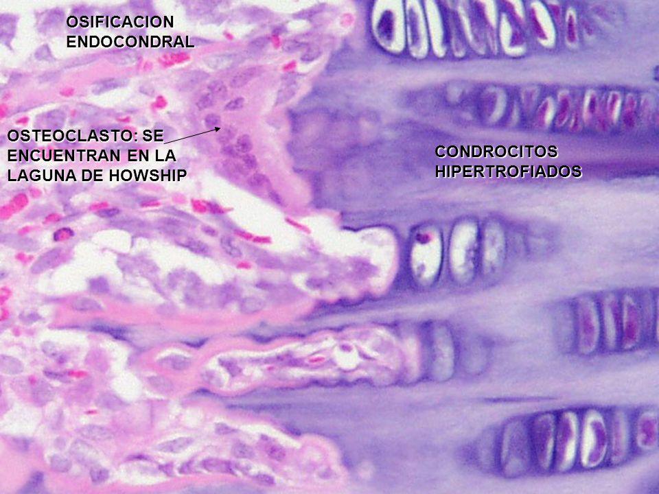OSIFICACION ENDOCONDRAL