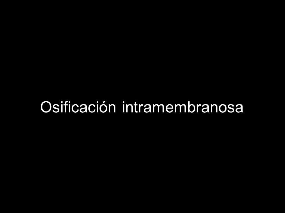 Osificación intramembranosa