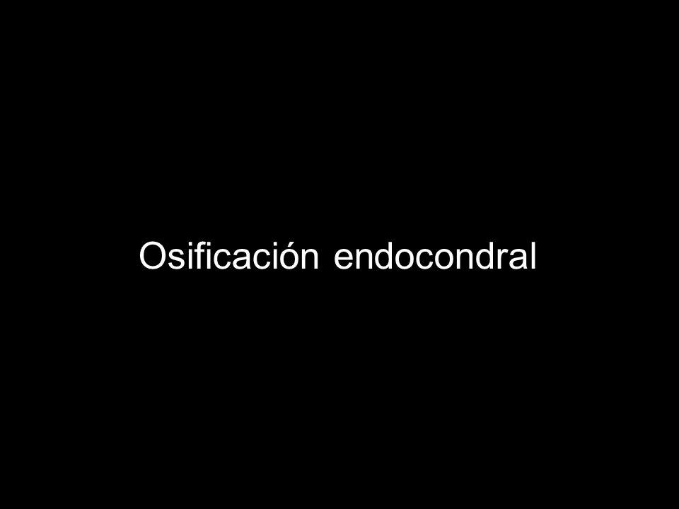 Osificación endocondral
