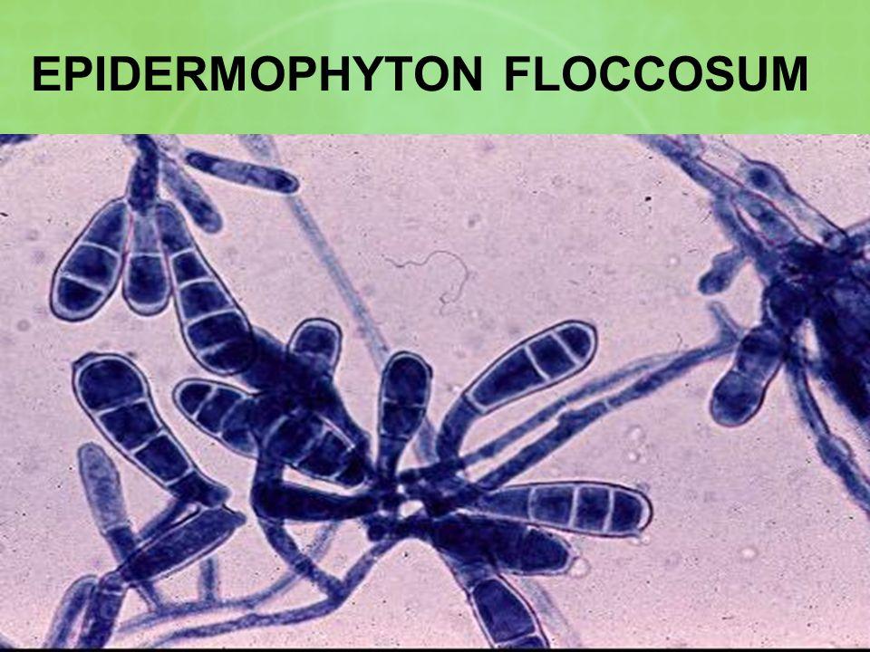 EPIDERMOPHYTON FLOCCOSUM
