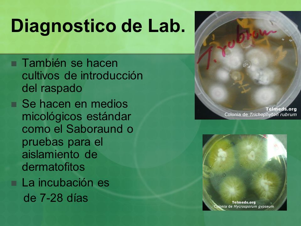 Diagnostico de Lab. También se hacen cultivos de introducción del raspado.