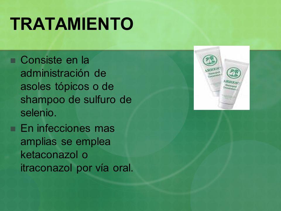 TRATAMIENTO Consiste en la administración de asoles tópicos o de shampoo de sulfuro de selenio.