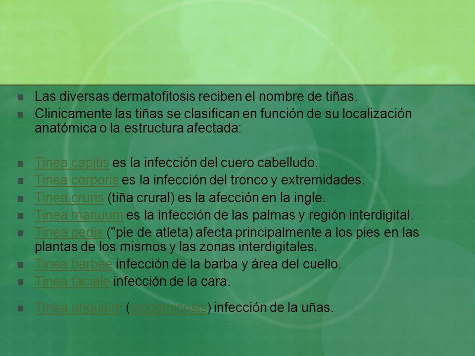 Las diversas dermatofitosis reciben el nombre de tiñas.