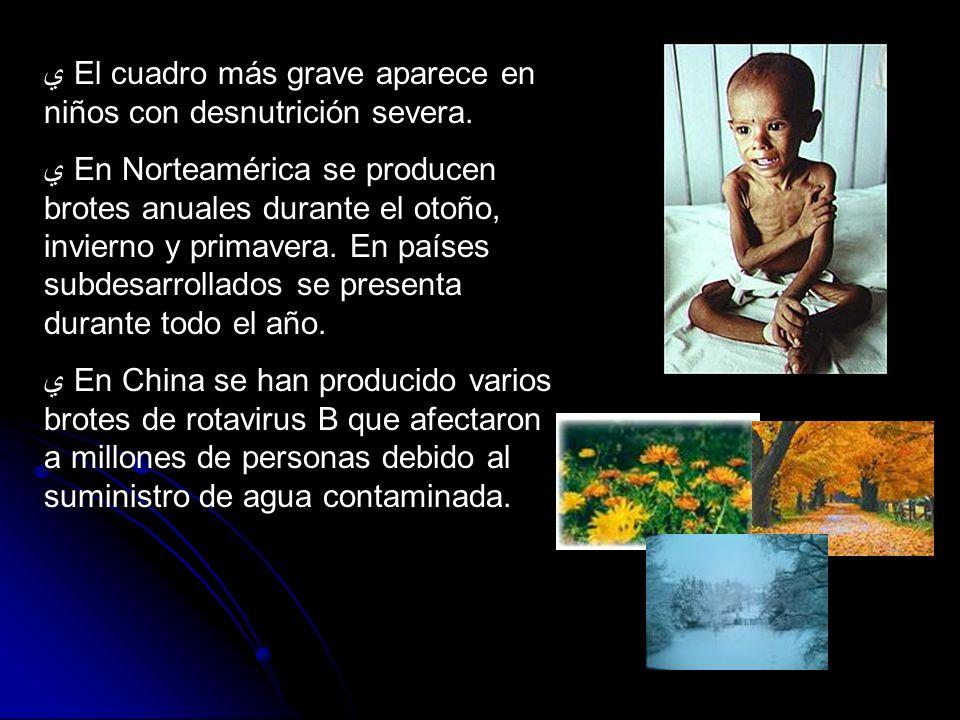 El cuadro más grave aparece en niños con desnutrición severa.