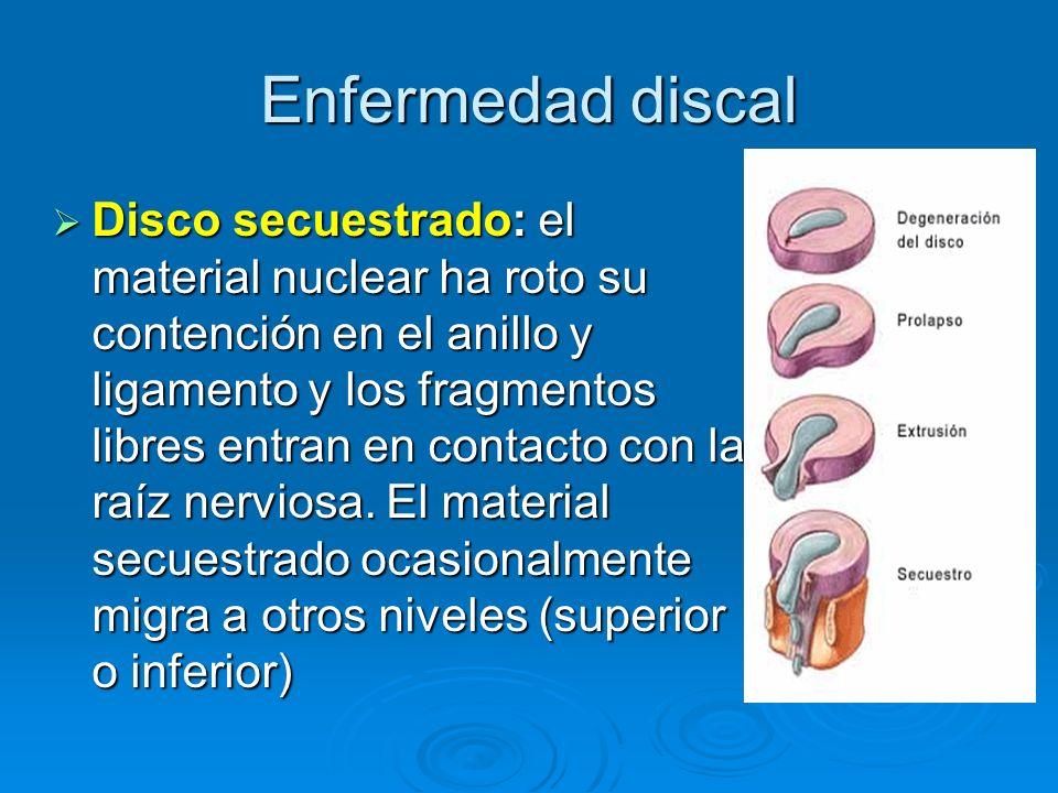 Enfermedad discal