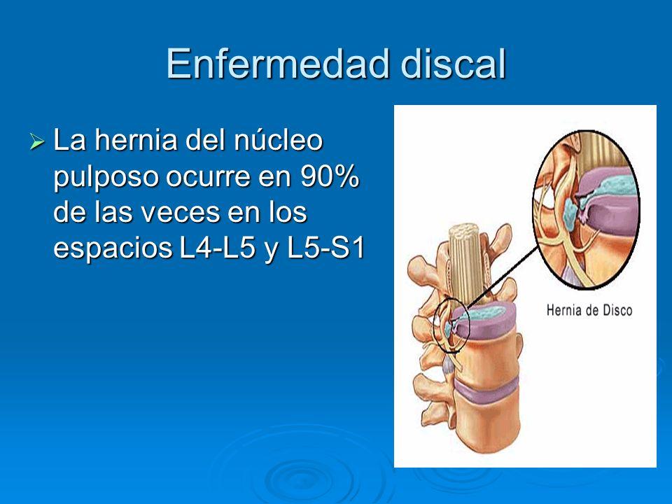 Enfermedad discal La hernia del núcleo pulposo ocurre en 90% de las veces en los espacios L4-L5 y L5-S1.
