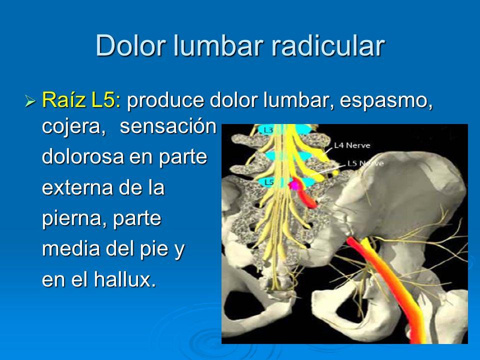 Dolor lumbar radicular