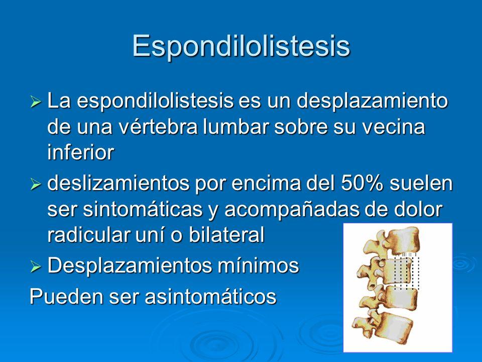 Espondilolistesis La espondilolistesis es un desplazamiento de una vértebra lumbar sobre su vecina inferior.