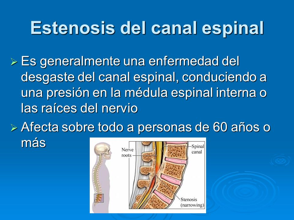 Estenosis del canal espinal