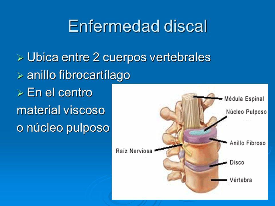 Enfermedad discal Ubica entre 2 cuerpos vertebrales