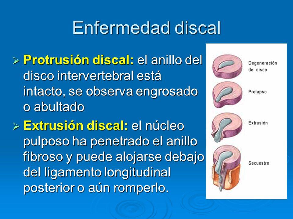 Enfermedad discal Protrusión discal: el anillo del disco intervertebral está intacto, se observa engrosado o abultado.