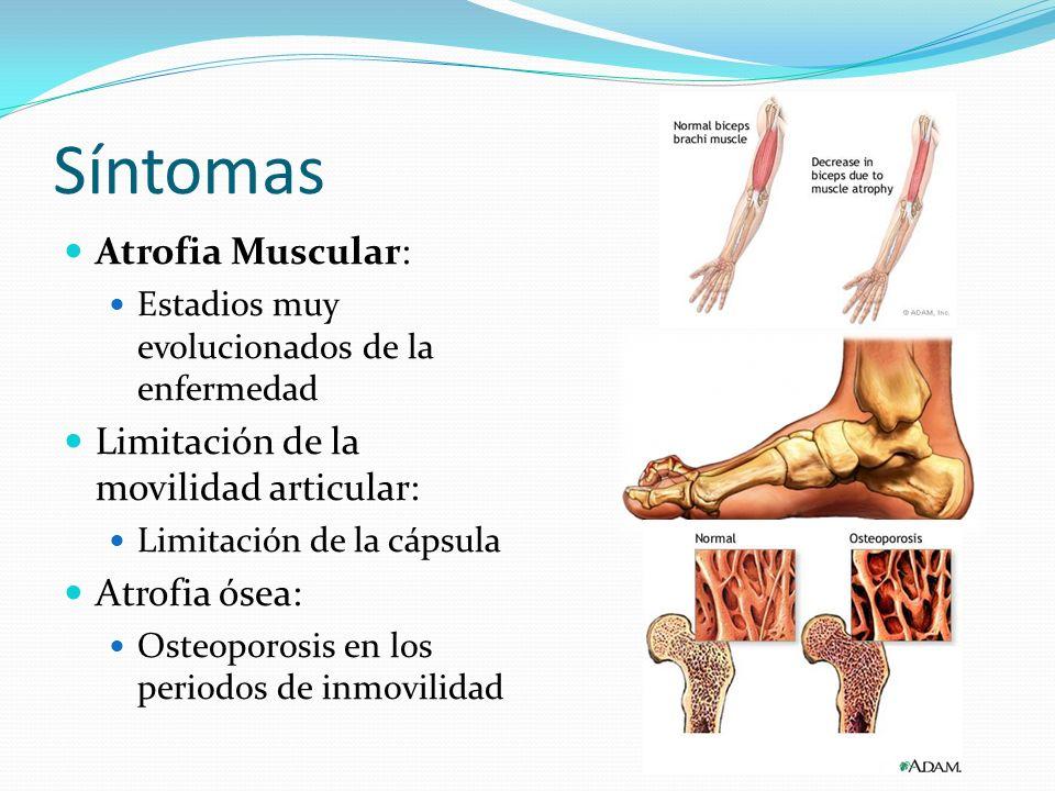 Síntomas Atrofia Muscular: Limitación de la movilidad articular: