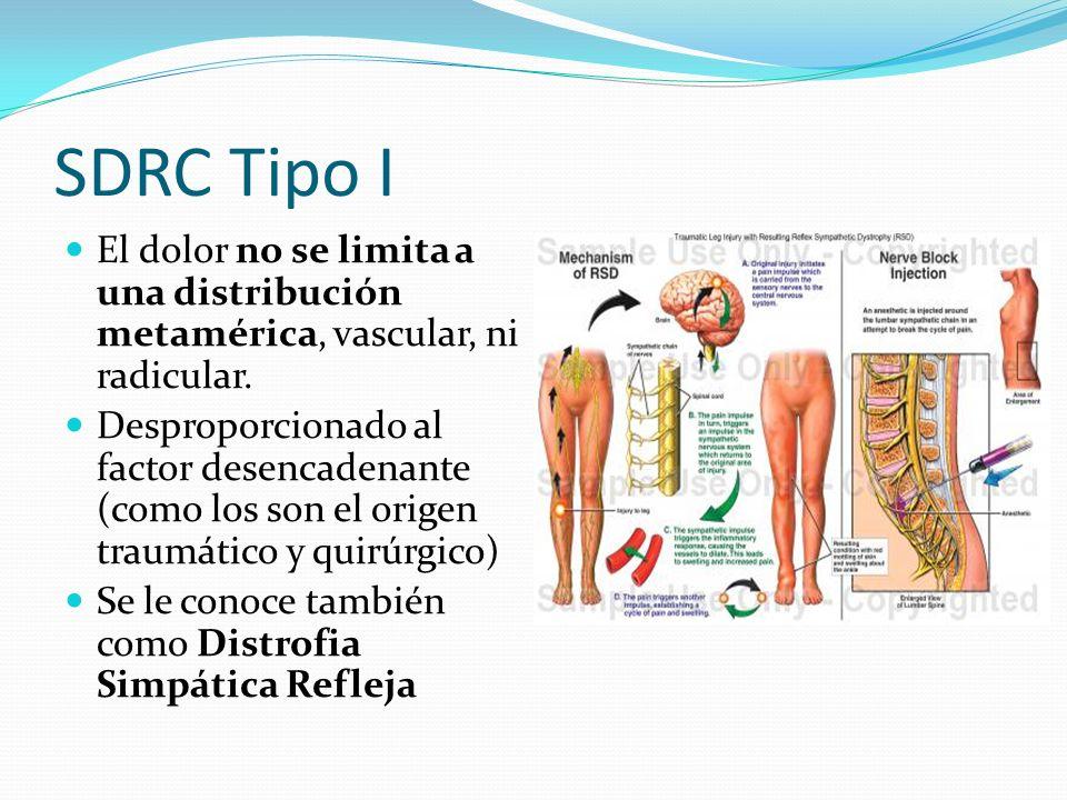 SDRC Tipo IEl dolor no se limita a una distribución metamérica, vascular, ni radicular.