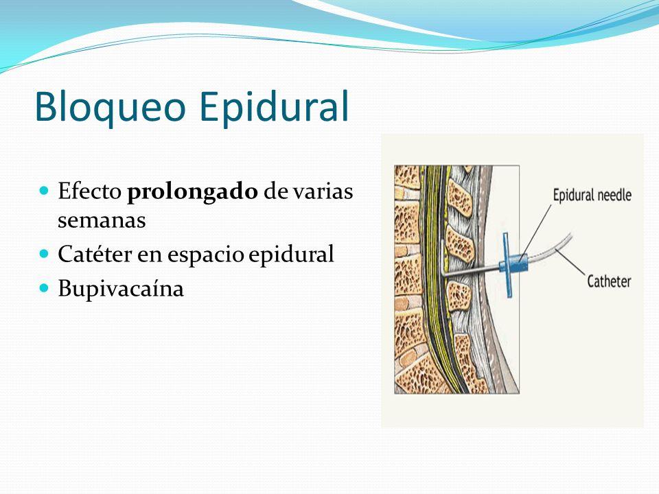 Bloqueo Epidural Efecto prolongado de varias semanas