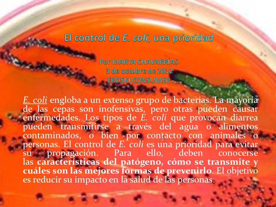 El control de E. coli, una prioridad Por MARTA CHAVARRÍAS 3 de octubre de 2012 EROSKI CONSUMER