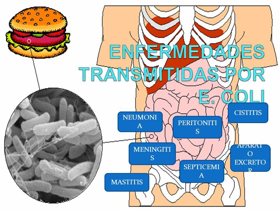 ENFERMEDADES TRANSMITIDAS POR E. COLI