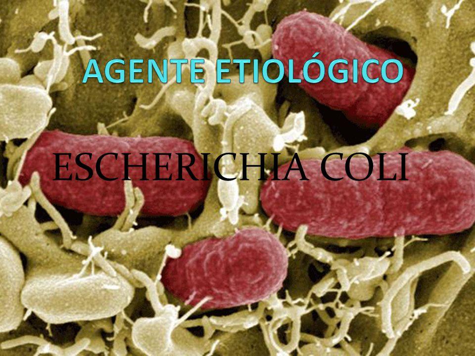 AGENTE ETIOLÓGICO ESCHERICHIA COLI