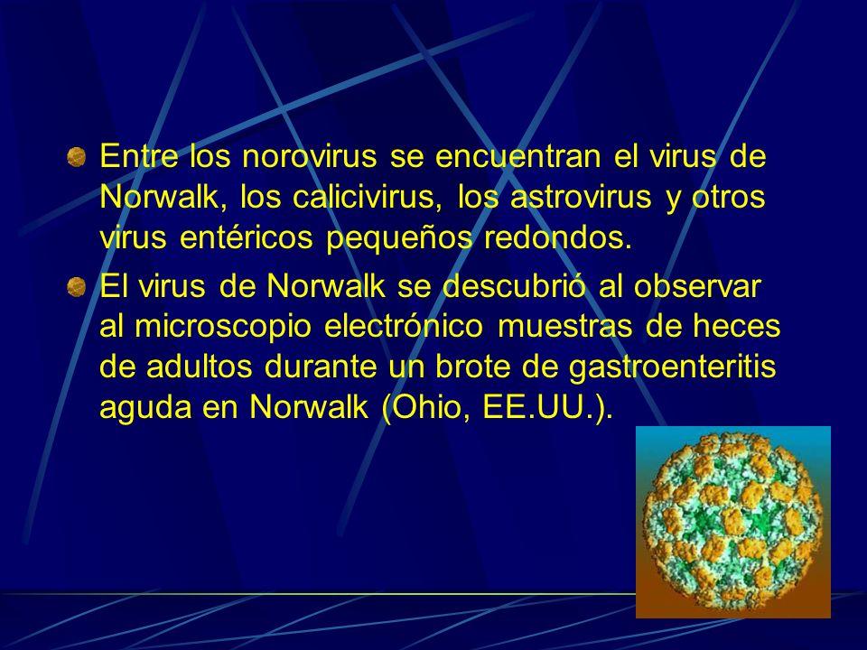 Entre los norovirus se encuentran el virus de Norwalk, los calicivirus, los astrovirus y otros virus entéricos pequeños redondos.