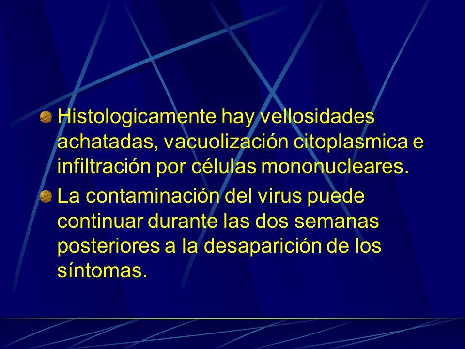 Histologicamente hay vellosidades achatadas, vacuolización citoplasmica e infiltración por células mononucleares.