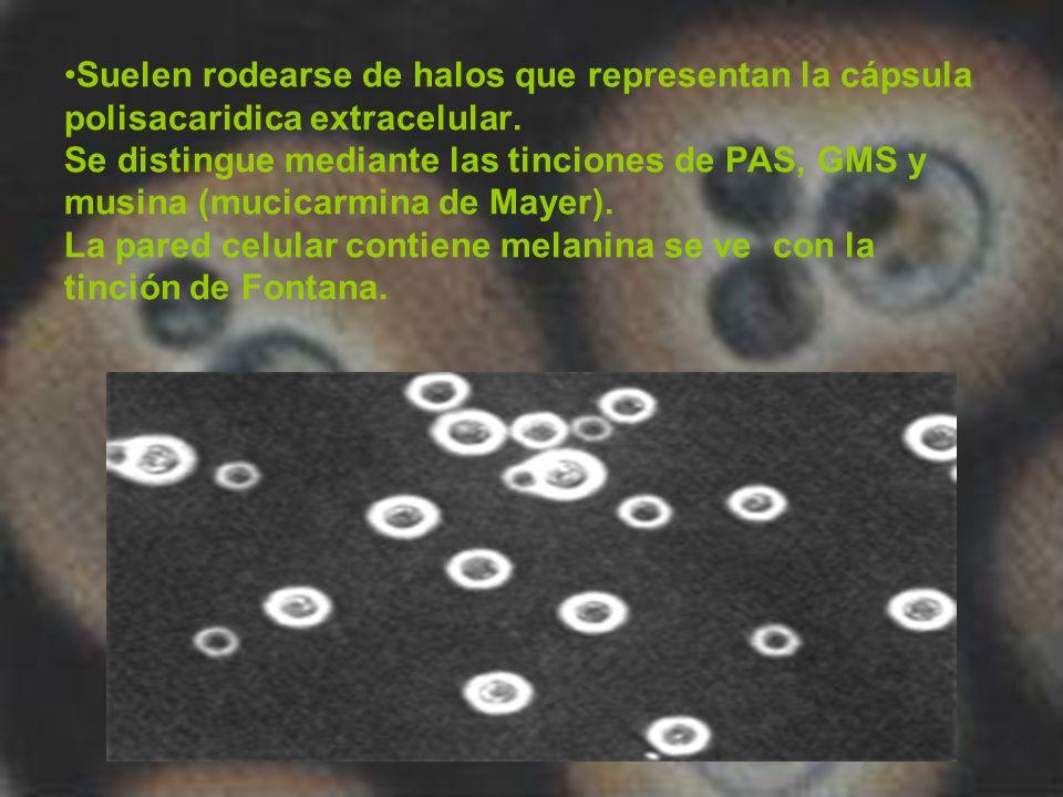 Suelen rodearse de halos que representan la cápsula polisacaridica extracelular.