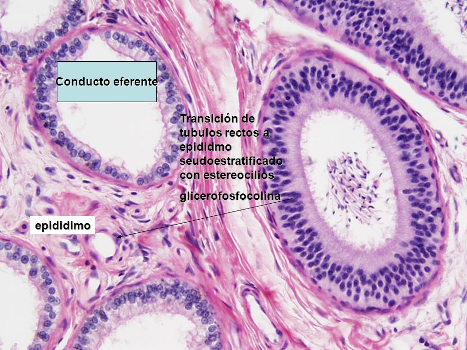 Conducto eferente Transición de tubulos rectos a epididmo seudoestratificado con estereocilios. glicerofosfocolina.