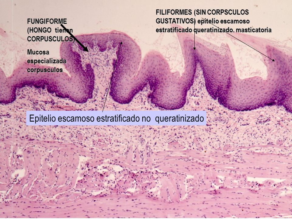 Epitelio escamoso estratificado no queratinizado