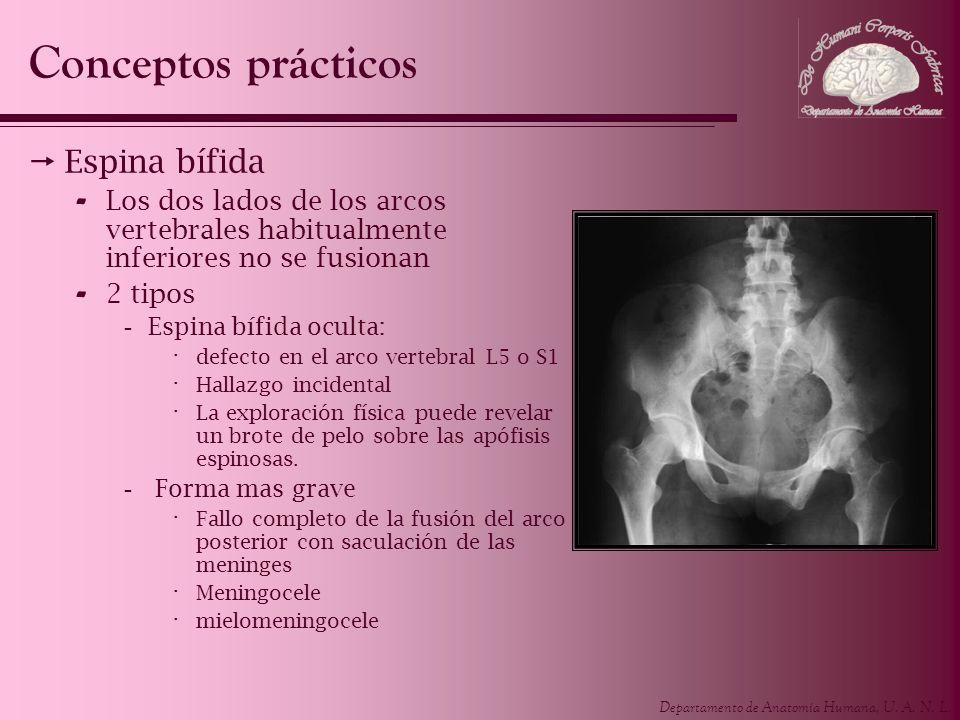 Conceptos prácticos Espina bífida